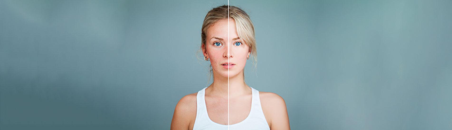 Hautarztpraxis am Roseneck - Akne - Rosacea